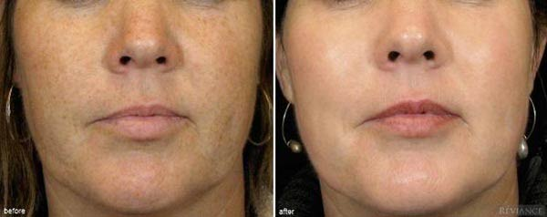 Age-Spot-Removal