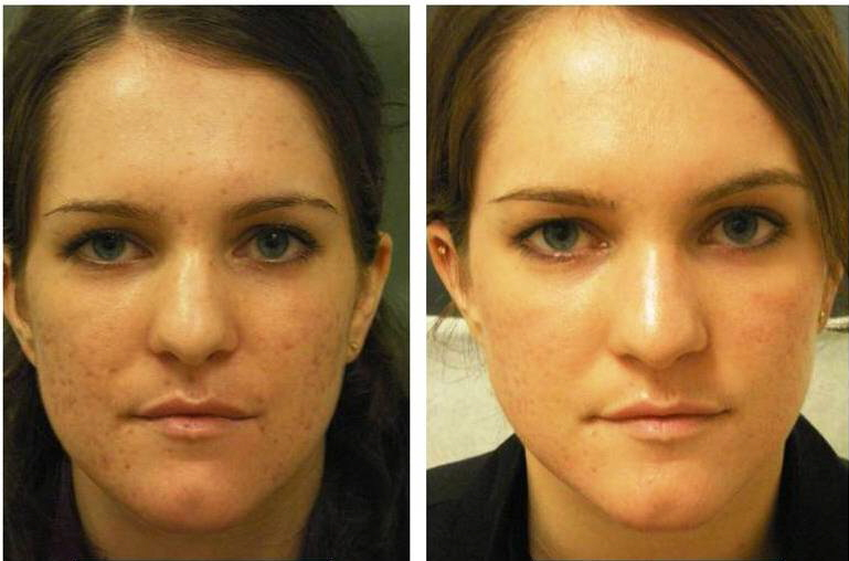 CO2-Laser-Treatment-New-York-Acne-Scars